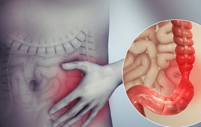 Taking CBD For IBS: Does It Really Work?