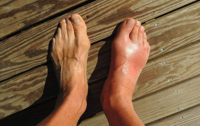 CBD Oil For Gout: What You Need To Know